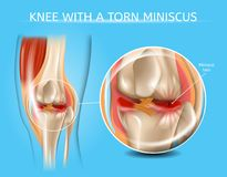 Injured Knee Joint with Torn Meniscus Vector Chart. Knee with Torn Meniscus Realistic Vector Medical Scheme with Damaged Knee Joint and Magnified Painful royalty free illustration