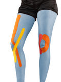 Knee treated with tape therapy Royalty Free Stock Photo