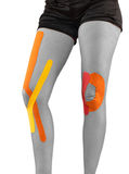Knee treated with tape therapy Stock Image