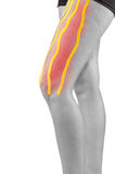 Knee treated with tape therapy Stock Photos
