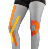 Knee treated with tape therapy Royalty Free Stock Image