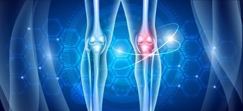 Knee treatment stock photos