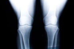 Knee x-ray image Stock Photography