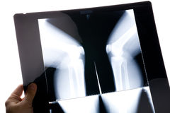 Knee x-ray image Royalty Free Stock Image