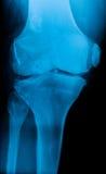 Knee x-ray Royalty Free Stock Photos