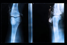 Knee X-ray after arthroscopic surgery Stock Photo
