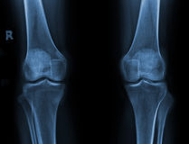 Knees. X-ray of both knees Stock Photography