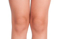 Knees a little child Royalty Free Stock Photography