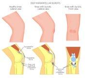 Knie bursitis_Deep infrapatellar Bursitis lizenzfreie abbildung