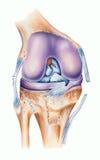 Knie - Ligament-Risse stock abbildung