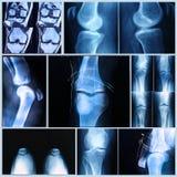 Knie medisch examen: Röntgenstraal en MRI-aftasten Stock Fotografie