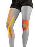 Knie met bandtherapie die wordt behandeld Stock Afbeelding