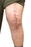 Knie met litteken, op wit wordt geïsoleerd dat Royalty-vrije Stock Afbeeldingen