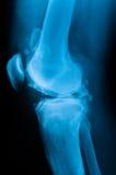Knie-Röntgenstrahl Lizenzfreies Stockbild