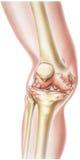 Knie - rheumatoide Arthritis lizenzfreie stockfotografie