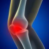 Knie-Schmerz lizenzfreie abbildung