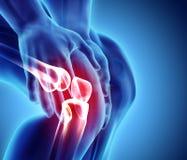 Knie schmerzlich - skeleton Röntgenstrahl lizenzfreie abbildung