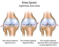 Knie-Verstauchung Stockbilder