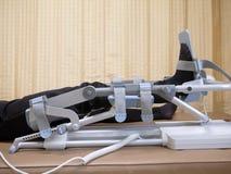 Kniecpm apparaat, Rehabilitatie na kniechirurgie stock foto's