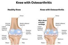 Kniegelenk mit Arthrose lizenzfreie abbildung