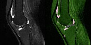 Knieverletzung, Meniskusriß, MRI stock abbildung