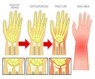 Knochen fracture_Wrist Bruchosteoporose Stockfoto