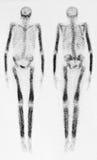 Knochen-Scan Stockfotos