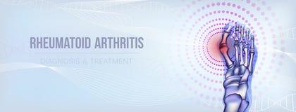 Knochenkonzept der rheumatoiden Arthritis stock abbildung