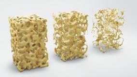Knochenstruktur normal und mit Osteoporose Stockfotografie
