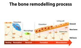 Kość przemodelowywa proces Obrazy Stock