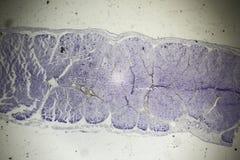Kośćcowego mięśnia sekcja pod mikroskopem zdjęcie stock