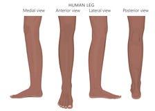 Kości fracture_Leg anatomii Afrykański Arabski indianin Zdjęcie Stock