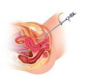 Kobiecy cistoscopia Fotografia Stock