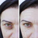 Kobiet zmarszczeń skutek przed i po odmładzanie procedurami podnosi, terapia obraz royalty free
