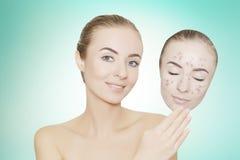 Kobieta bierze oddaloną maskę z trądzikiem i krostami, błękitny tło Obraz Stock