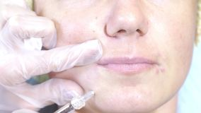 Kobieta dostaje wtryskową twarz otrzymywa twarzowych traktowanie kliniki chirurgii plastycznej napełniacze opryskuje inżektor pro zbiory