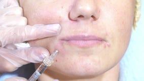 Kobieta dostaje wtryskową twarz otrzymywa twarzowych traktowanie kliniki chirurgii plastycznej napełniacze opryskuje inżektor pro zdjęcie wideo