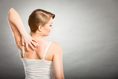 kobieta drapa jej itchy plecy z alergii wysypką Fotografia Stock