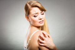 Kobieta drapa jej itchy rękę z alergii wysypką obrazy stock