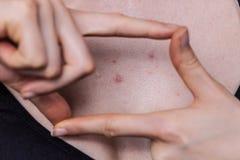 Kobieta ma krosty czerwieni punkty na klatce piersiowej zdjęcie royalty free