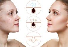 Kobieta pokazuje dlaczego zanieczyszcza? pores na twarzy i czy?ci? zdjęcia stock