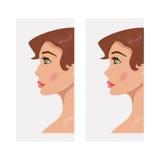 Kobieta przed i po rynoplastyką również zwrócić corel ilustracji wektora Fotografia Royalty Free