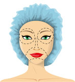 Kobieta przygotowywa chirurgia plastyczna Zdjęcie Stock