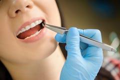 Kobieta z ceramicznymi brasami na zębach przy stomatologicznym biurem Zdjęcia Stock
