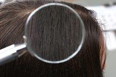 Kobieta z dandruff w jej włosy, widok przez powiększać - szkło zdjęcia stock