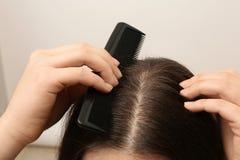 Kobieta z gręplą i dandruff w jej ciemnym włosy na lekkim tle zdjęcia royalty free