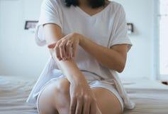 Kobieta z, scratchon i jej ręka od alergii, zdrowie alergii skóry opieki problem obrazy stock