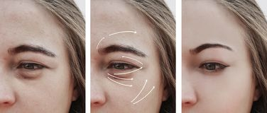 Kobieta zmarszczenie nabrzmiewający skutek stawia czoło przed i po procedurami, korekcja fotografia royalty free