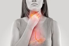 Kobiety cierpienie od zjadliwego reflux zdjęcie stock
