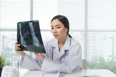 Kobiety lekarka w szpitalnej patrzeje promieniowanie rentgenowskie filmu opiece zdrowotnej obrazy royalty free